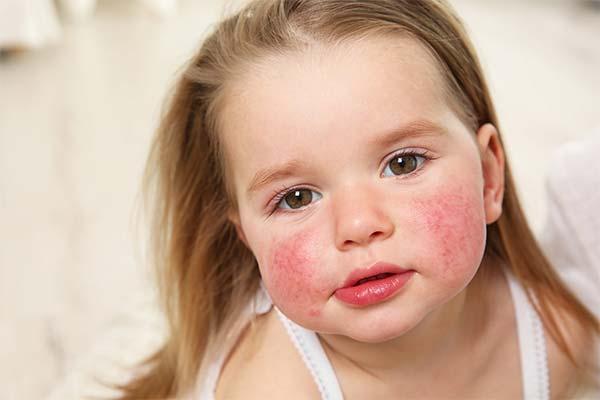 Аллергия у ребенка во сне