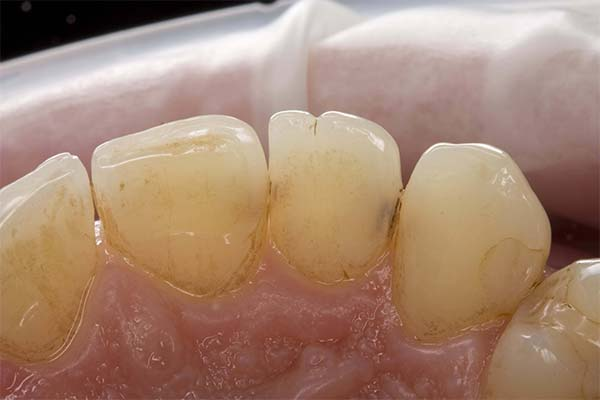 Кариес на нижних зубах во сне