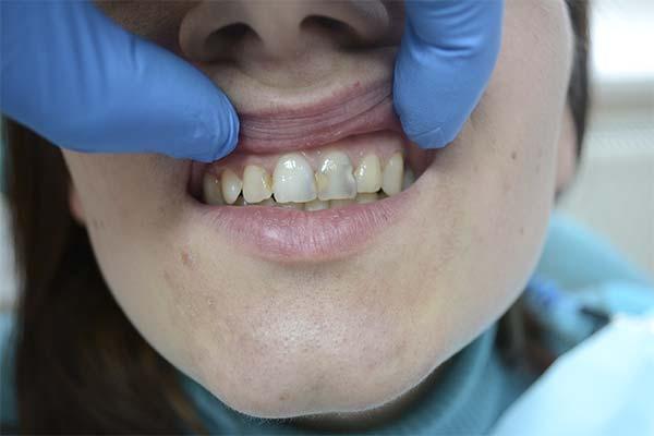 Сонник кариес на зубах