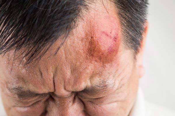 Сонник шишка на голове