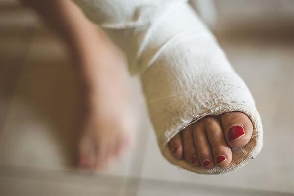 К чему снится сломанная нога