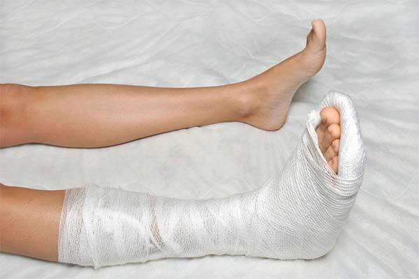 Сломанная нога во сне