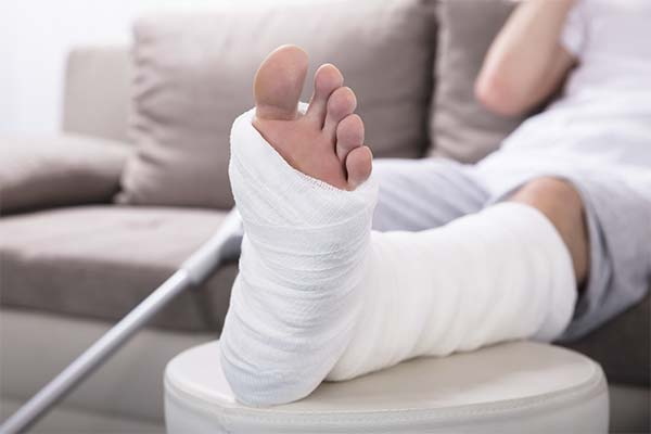 Сонник сломанная нога
