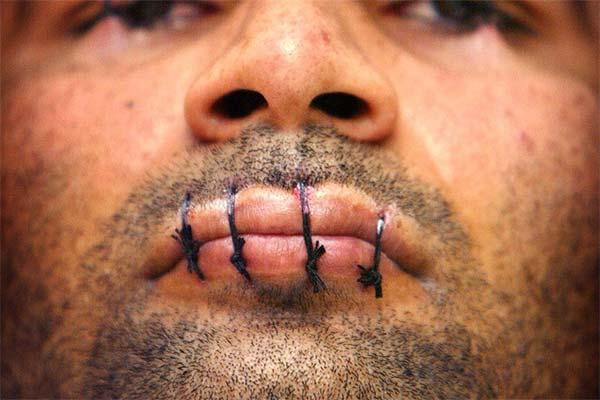 Сонник зашитый рот