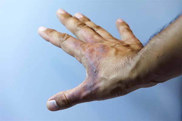 Ожог кистей рук