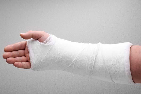 Сонник сломанная рука