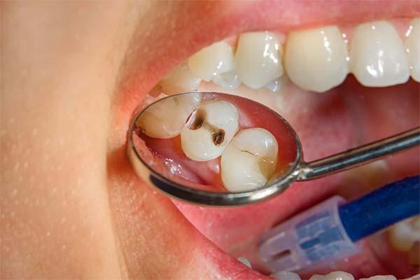 К чему снится дырка в зубе