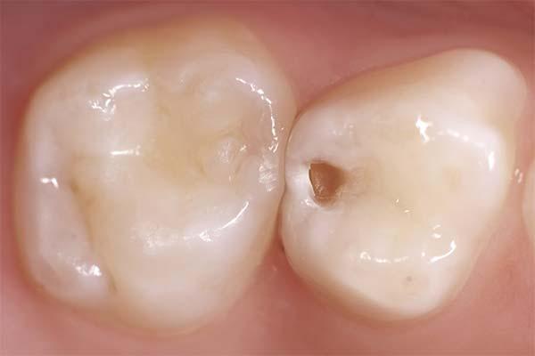 Сонник дырка в зубе